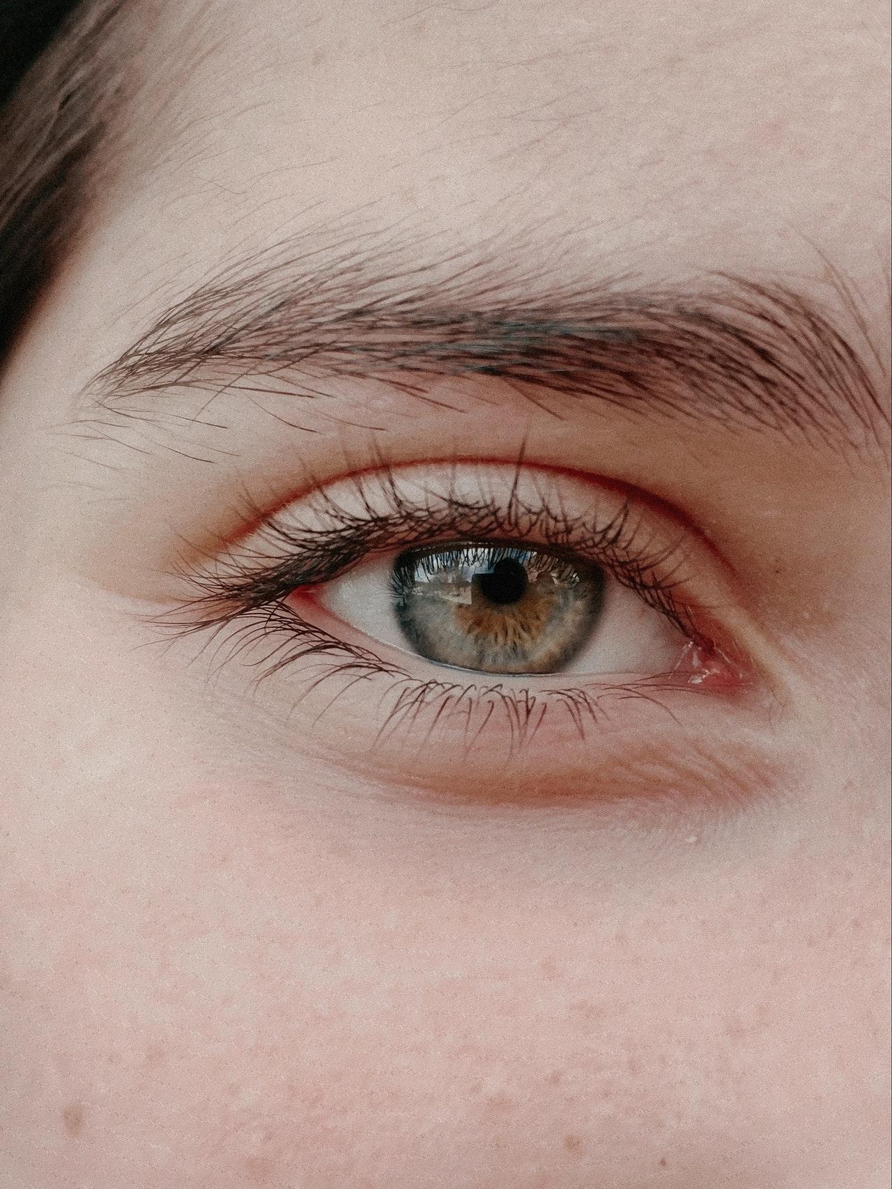 Göz Altı Kırışıklıkları İçin Çözümler